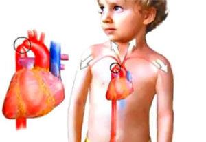 Аортальная недостаточность у детей