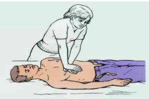 Техника спасения при приступе сердечной недостаточности