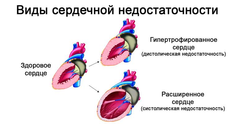 Как лечить сердечно-сосудистую недостаточность