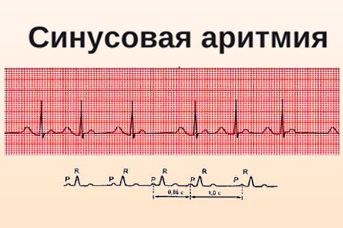 Синусовая аритмия сердца у беременной 75