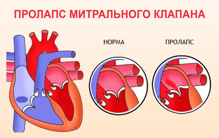 Пролапс митрального клапана у беременных 23
