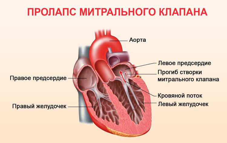 Пролапс митрального клапана у беременных 18
