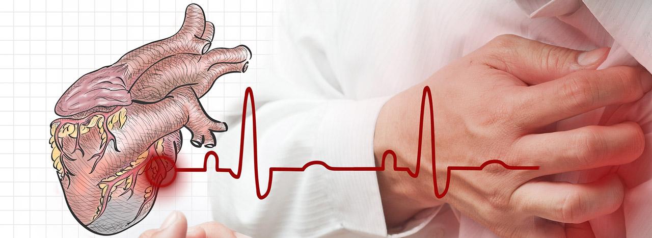 Признаки и симптомы инфаркта у женщин, причины и последствия картинки
