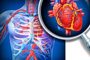 Ишемическая болезнь сердца в острой форме