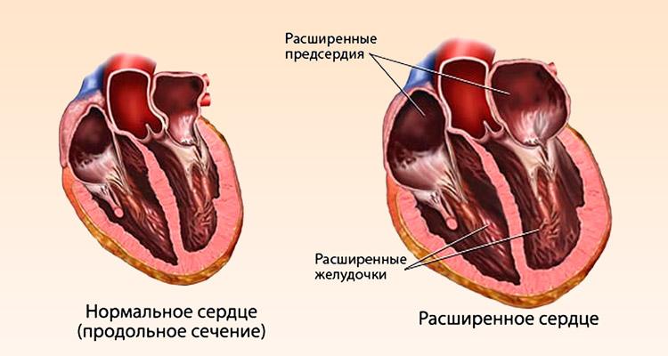 Расширенное сердце при сердечной недостаточности