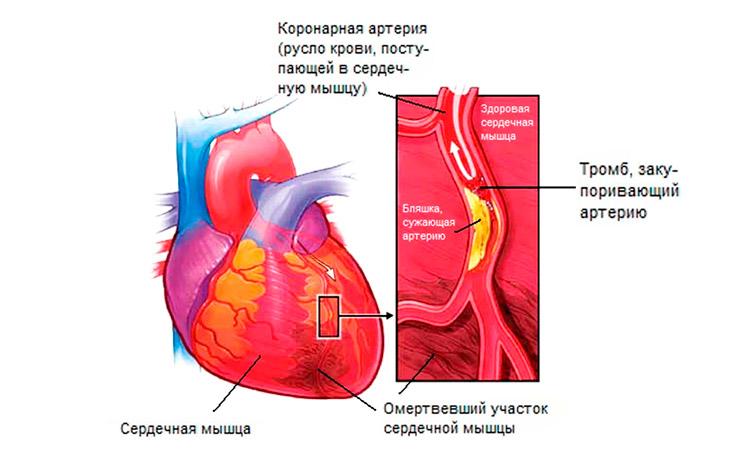 Левожелудочковая сердечная недостаточность: симптомы острой формы ...