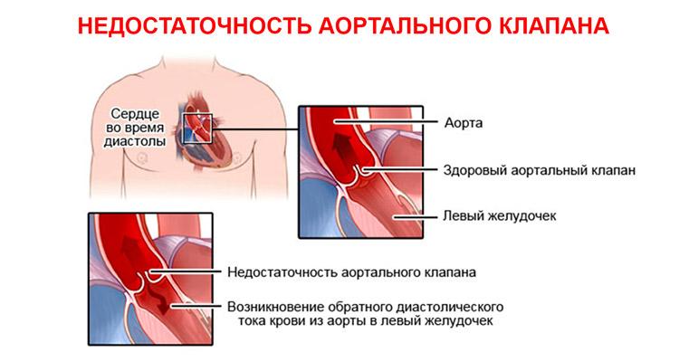 Недостаточность аортального клапана схема