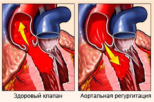 Заболевание аортного клапана
