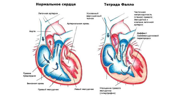 Сердечная недостаточность у новорожденных детей