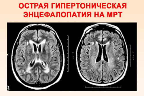 Острая гипертоническая энцефалопатия на МРТ