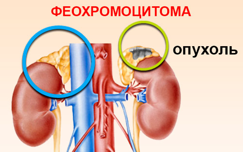 Опухоль феохромоцитома