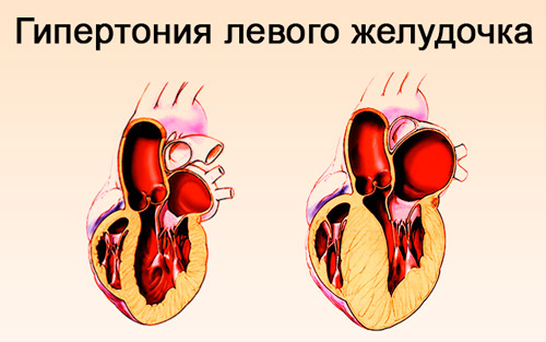 Изменения в левом желудочке