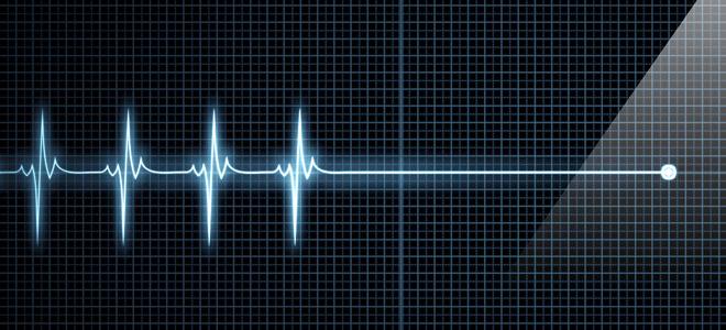Внезапная смерть от сердечной недостаточности