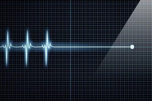 Острая коронарная недостаточность симптомы перед смертью