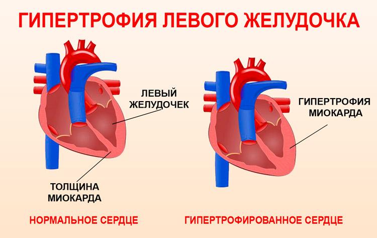 Гипертрофия сердечной деятельности