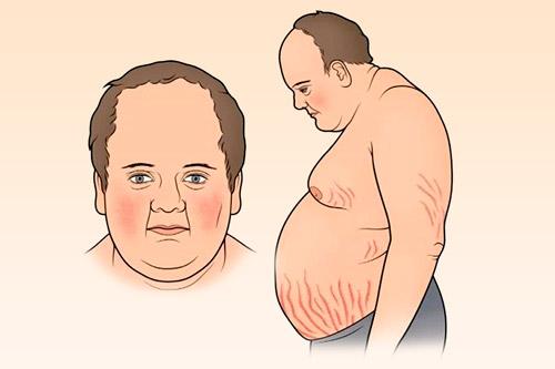 Больной болезнью Иценко-Кушинга