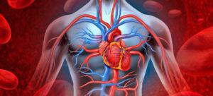 Эссенциальная артериальная гипертензия
