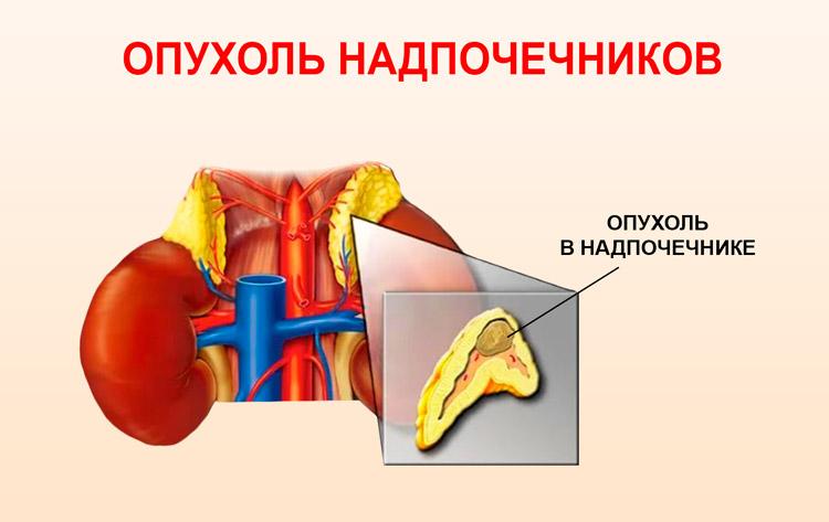 Опухоль в надпочечниках