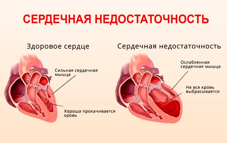 Патологические изменения в сердце