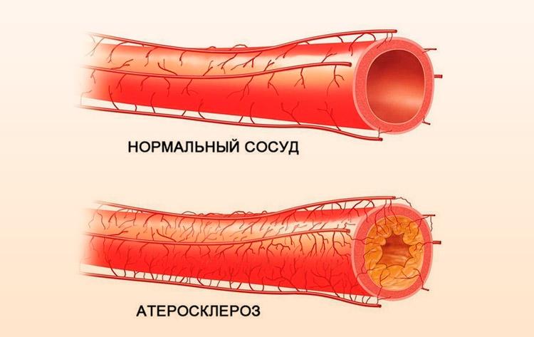 Сосуд с атеросклерозом