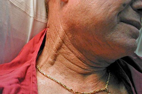 Набухшие вены на шее