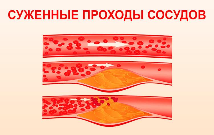 Признаки атеросклероза