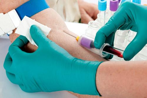 Забор крови на анализы