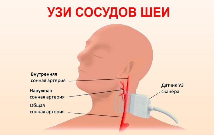 Ультразвуковое исследование сосудов шеи