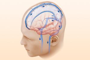 Гипертензия внутричерепная у взрослого