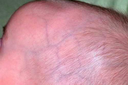 Под кожей головы ребенка сильно проступают вены