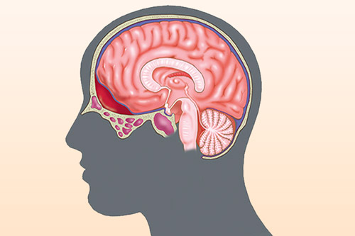 Гематома в мозгу