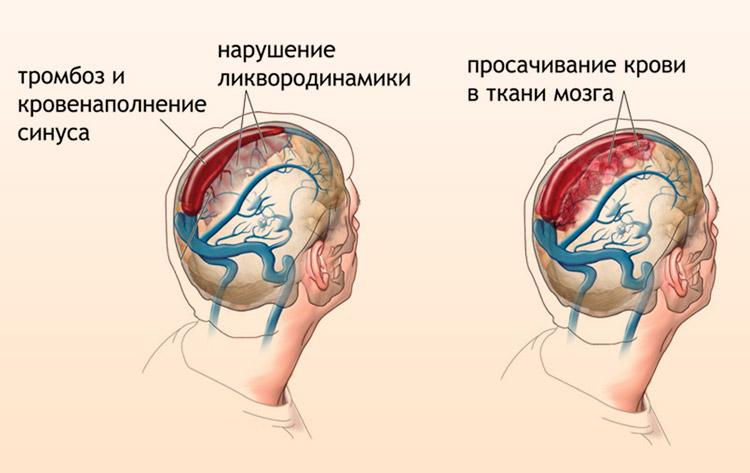 Изменения в головном мозге