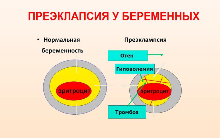 Гипертония, связанная с беременностью
