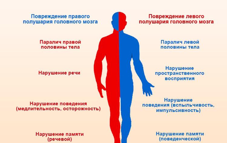 Повреждение полушарий головного мозга