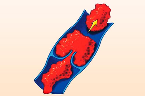 Тромбоэмболия