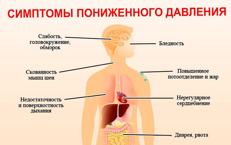 Признаки гипотонии