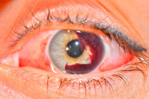 Травматические поражения глаз