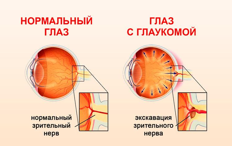 Глаз с глаукомой