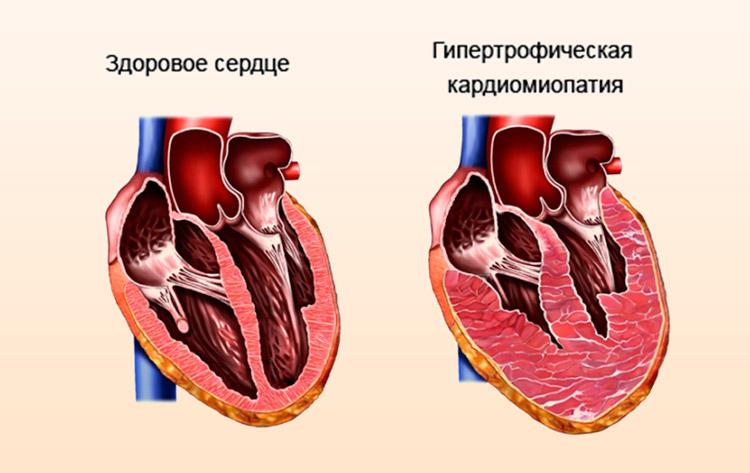 Гипертрофия сердечной ткани