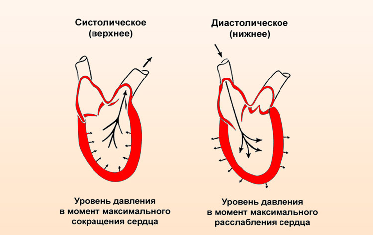 Изображение - Не опускается нижнее давление kak-umenshit-nizhnee-arterialnoe-davlenie_4