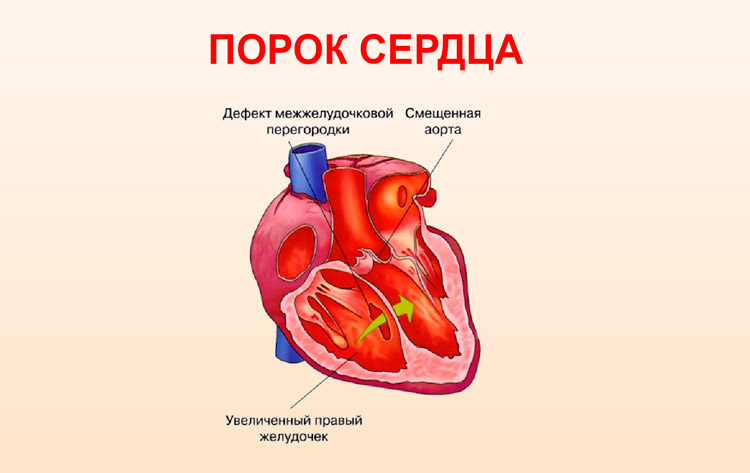 Порок развития сердечной мышцы