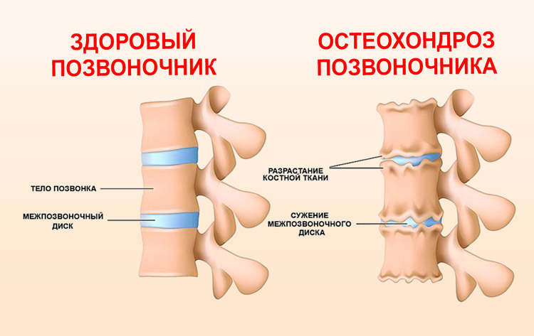 Остеохондроз позвоночника в шейном отделе