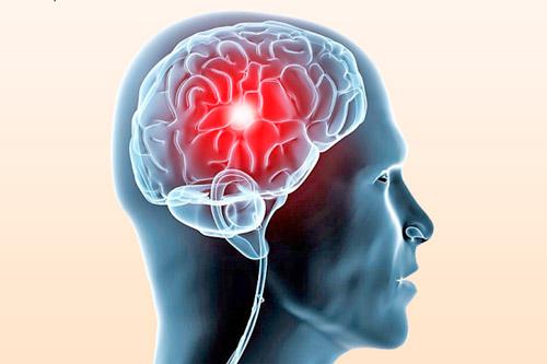Ишемическая болезнь мозга