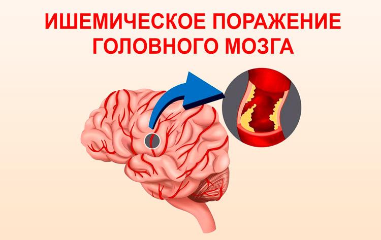 Ишемическое поражение головного мозга