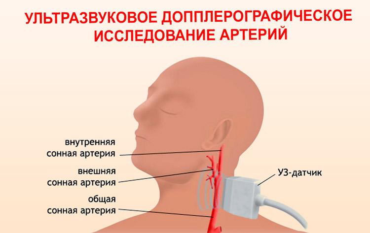 Ультразвуковое допплерографическое исследование артерий