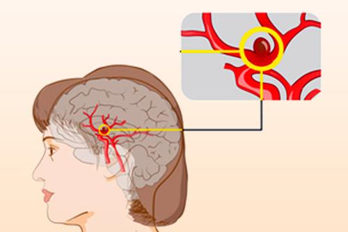 Разрыв мелких сосудов мозга