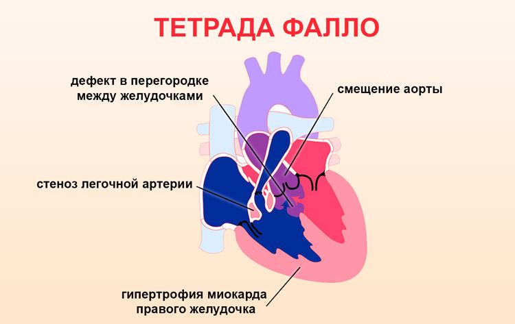 Врожденная патология Тетрада Фалло