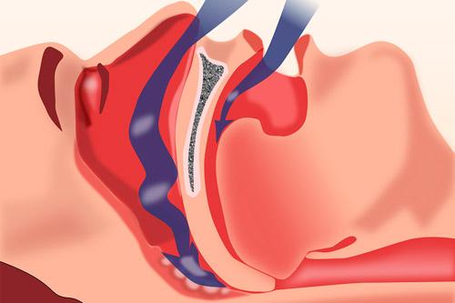 Смыкание стенок глотки при апноэ