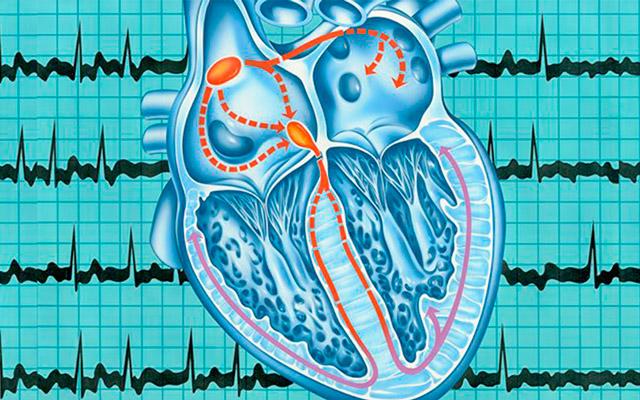 Все об аритмии сердца