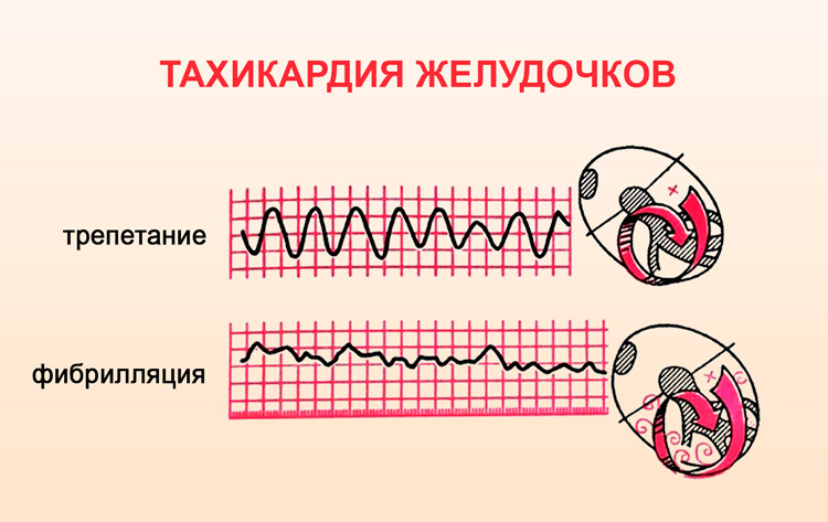 aritmiya serdca simptomy lechenie 8 - Troubles du rythme cardiaque